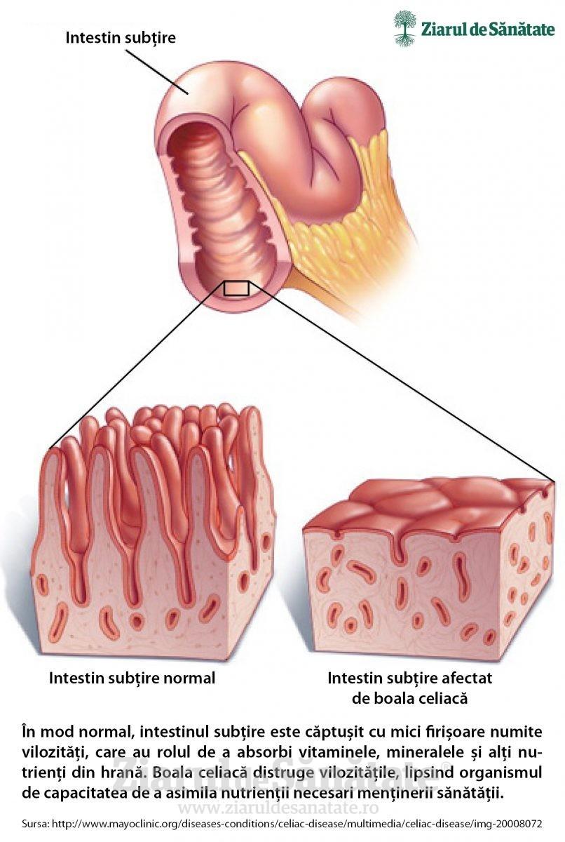 intestinul subtire