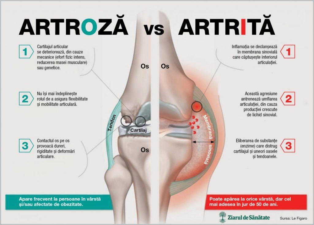 nutriție pentru artroza genunchiului