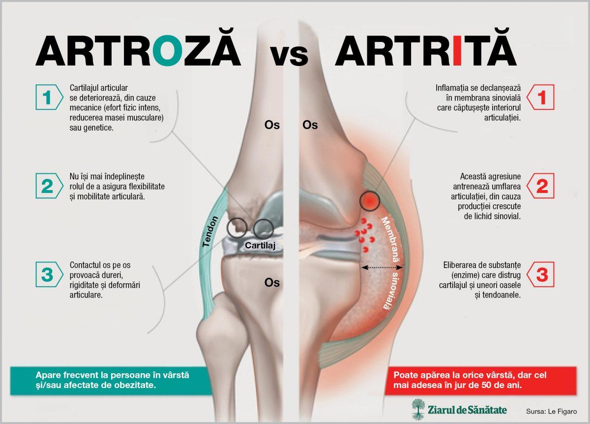 după efort fizic dureri articulare medicament pentru cartilaj și articulații