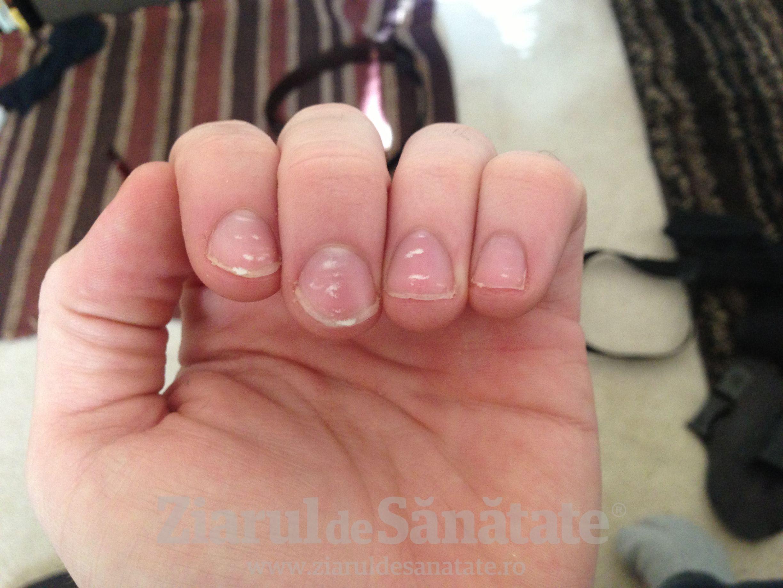 Striatii pe unghii