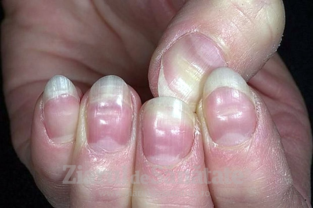 dermatita de contact unguentine cream